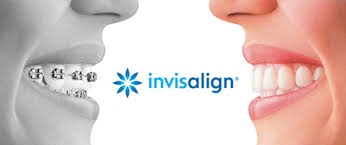 Invisalign Palm Beach Gardens dentist teens