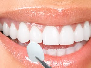 Porcelain Veneers Invisalign Dentist Palm Beach Gardens