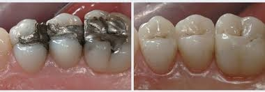 composite (tooth colored) filling dentist