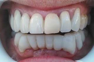 The Porcelain Dental Bridge Dentist of Palm Beach Gardens