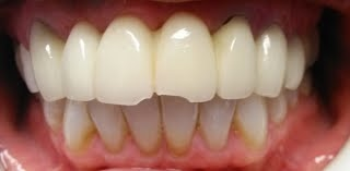 Dental Pictures Case 4 Dr. Kijanka