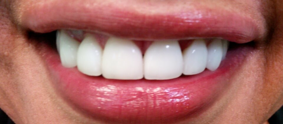 Dental Pictures Case 14 Invisalign Dentist Palm Beach