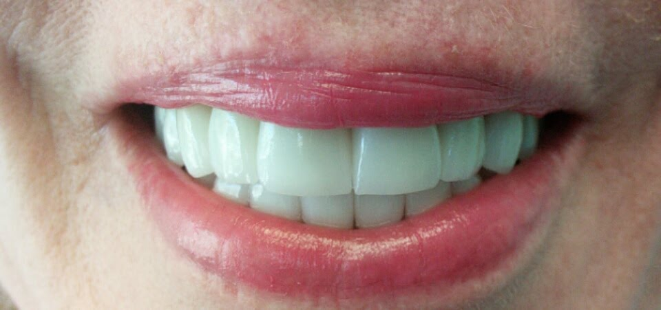 Dental Pictures Case 15 Invisalign Dentist Palm Beach