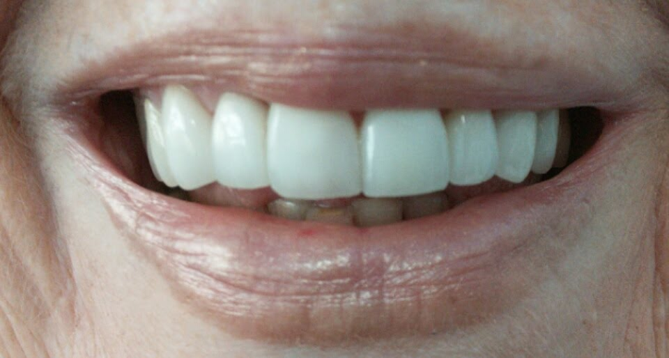 Dental Pictures Case 5 Invisalign Dentist Palm Beach