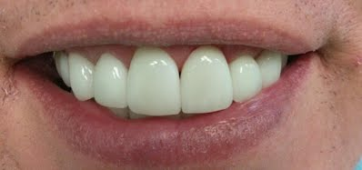Dental Pictures Case 13 Invisalign Dentist Palm Beach Gardens