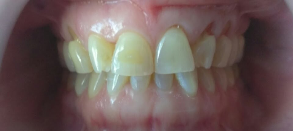 Dental Pictures Case 17 Invisalign Dentist Palm Beach Gardens